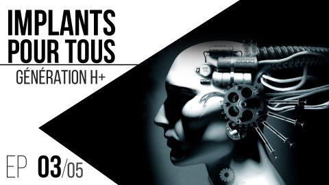 Implants pour tous // 03 : Génération H+.